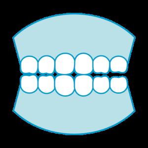 歯のかみ合わせ