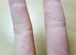 汗疱状湿疹の原因