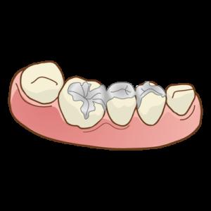 良い歯医者を見つけてください