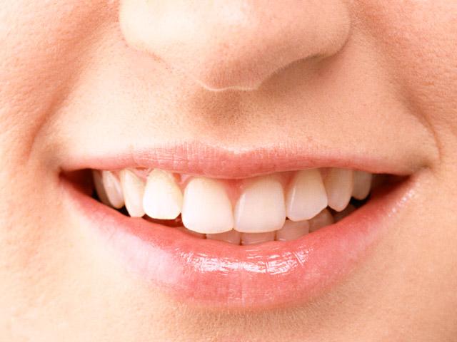 歯の部分矯正について