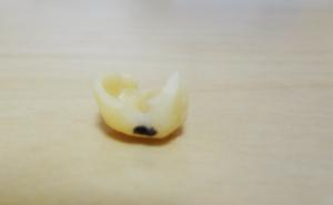 顎関節症の部分マウスピース