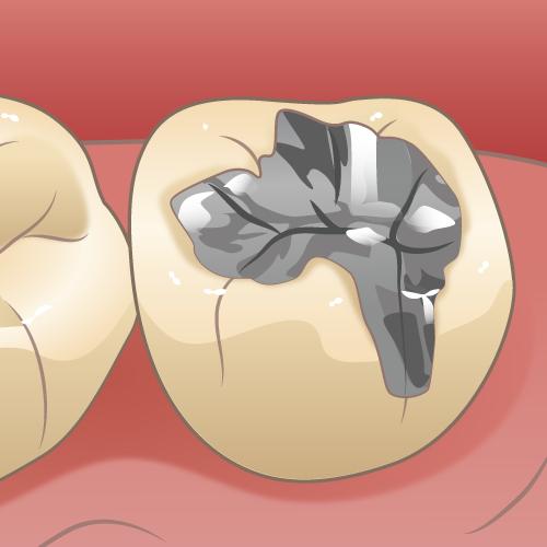 歯の詰め物をやり直す方法