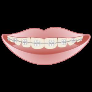ワイヤー矯正による歯列矯正