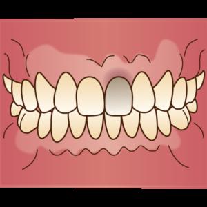神経が死んだ歯は変色している