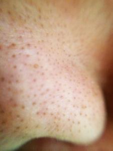 角栓の詰まった肌の表面
