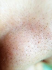 詰まった鼻の側面の皮脂