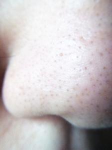 汚れた皮脂の詰まった鼻