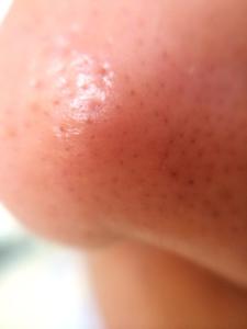 毛穴パック後の鼻
