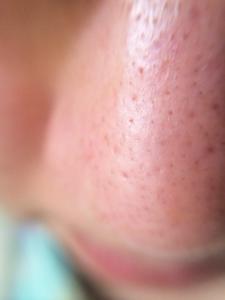 きれいな鼻の状態