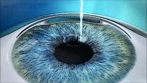 角膜内部を切除する手術方法