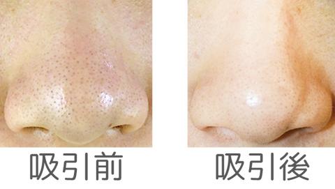 吸引前と吸引後の鼻