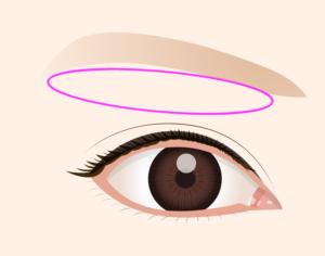 眼瞼皮膚弛緩症の手術方法