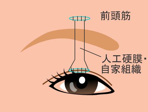 眼瞼下垂の手術:前頭筋つり上げ術