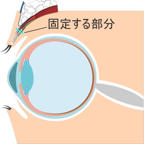 眼瞼下垂の手術:挙筋短縮術