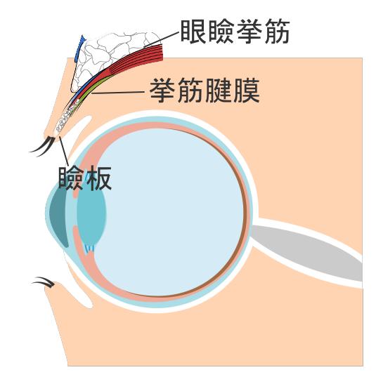 眼瞼挙筋と挙筋腱膜、瞼板の正しい位置