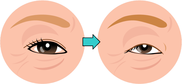 眼瞼下垂の症状が悪化していく