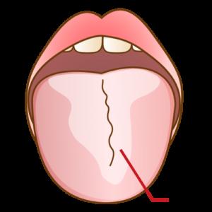 舌苔が付着した画像