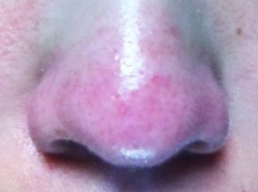 治療前の鼻角栓の状態