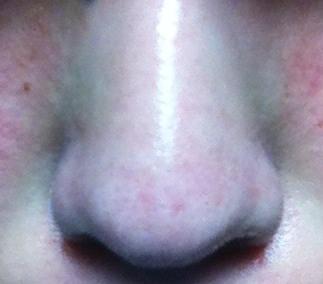治療した後の鼻角栓の状態