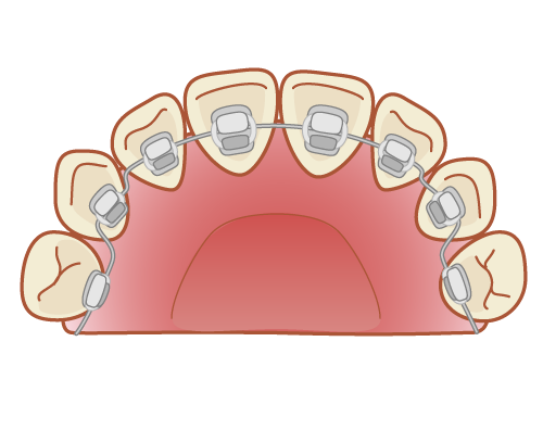 舌側矯正の失敗とデメリットや滑舌について