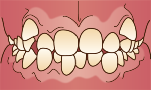 重度の乱くい歯は矯正が困難