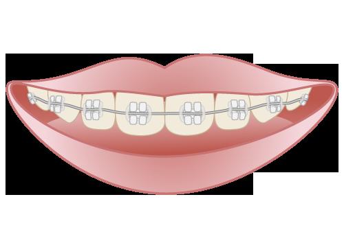 失敗せずにきれいな歯並びを目指した矯正