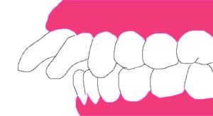 出っ歯が酷い状態