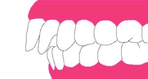 出っ歯の角度が変わって良くなる