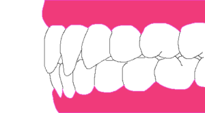 ワイヤー矯正だときれいな歯並びになる