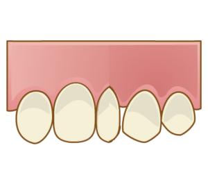 一般だけ狭くなった歯