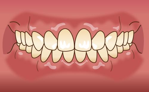 クリック矯正が成功してきれいな歯並びになる