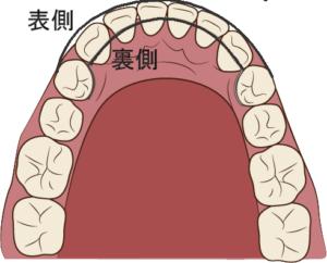 裏側の方が出っ歯を押し込みやすい