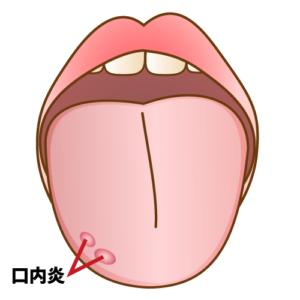 舌に傷ができて口内炎が発生