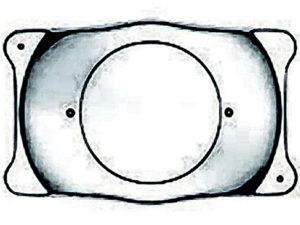 ICLによる近視矯正手術