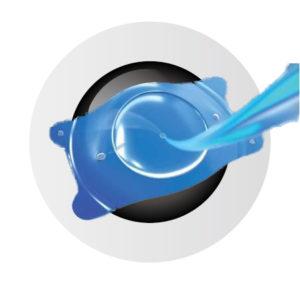 房水が塞がれないため眼圧上昇を防ぐ
