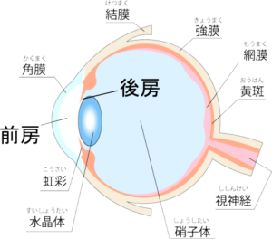 後房型有水晶体眼内レンズ(ICL)の挿入位置