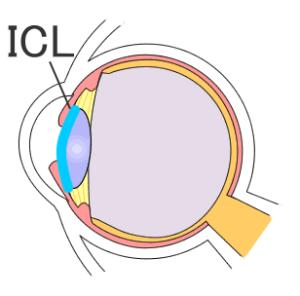失敗によるICLの再手術