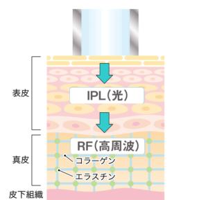 光エネルギーと高周波で肌を治療