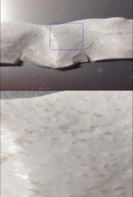 全体と拡大した鼻角栓の画像