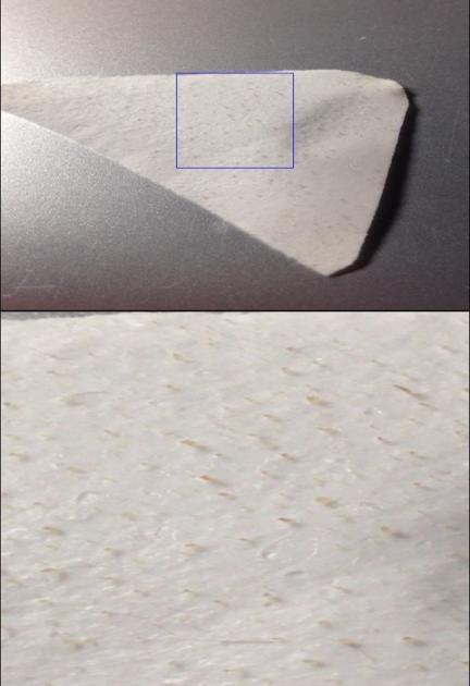 全体と拡大した毛穴すっきりパックで取れた角栓の画像