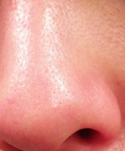 ツルツルの鼻の毛穴