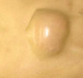 大きく化膿した粉瘤